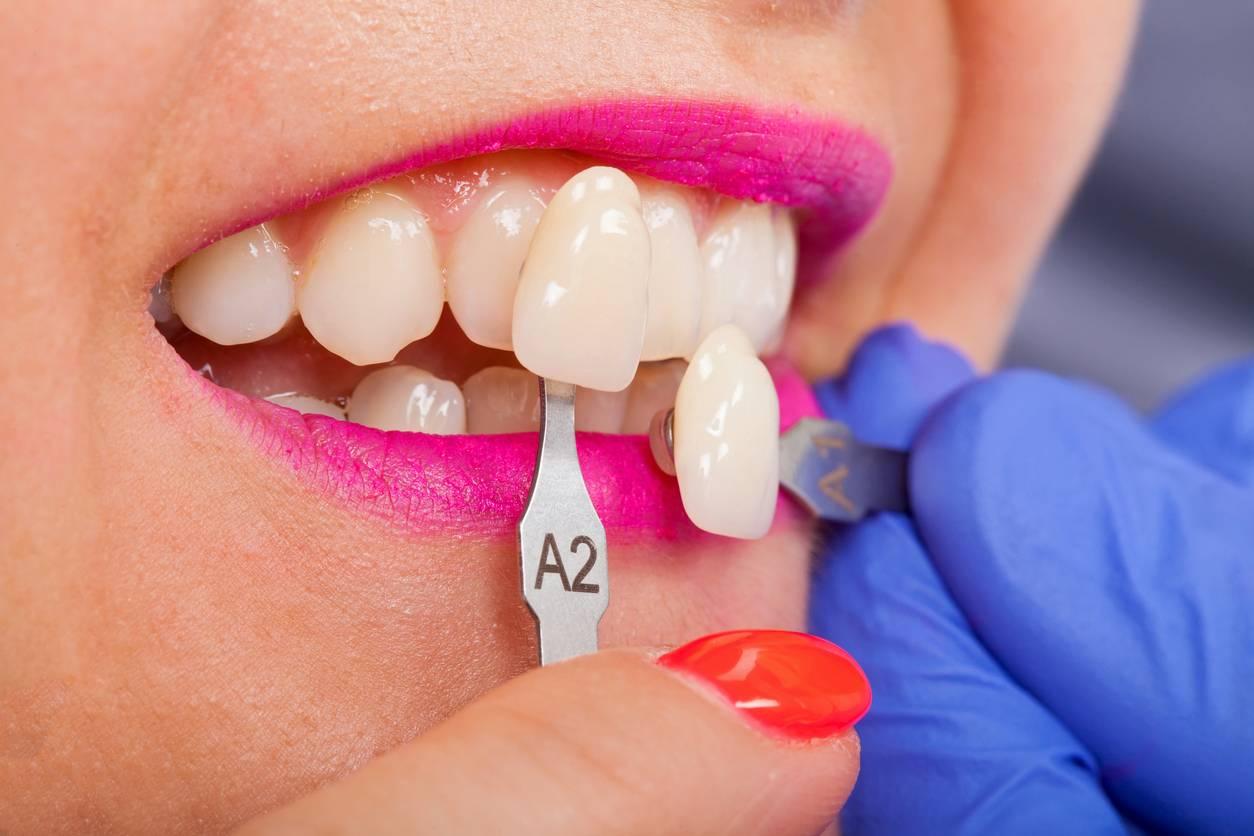questions facettes dentaires